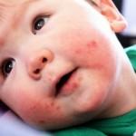 Những dấu hiệu cần biết khi trẻ bị chân tay miệng