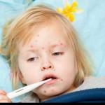 Những điều về bệnh sởi mẹ cần biết để phòng ngừa cho trẻ