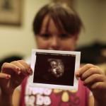 """Điều """"lạ lùng"""" có thể bạn chưa biết về thai nhi trong bụng mẹ"""